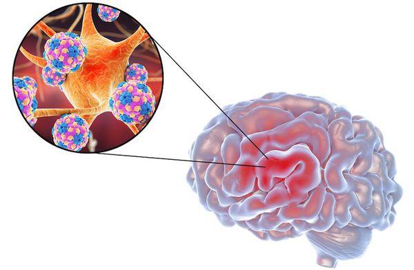 Возбудитель рассеянного склероза — нейтропный фильтрующийся вирус
