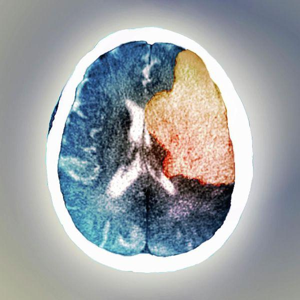 МРТ головного мозга: повреждение правого полушария при ишемии, которое стало причиной бредового расстройства