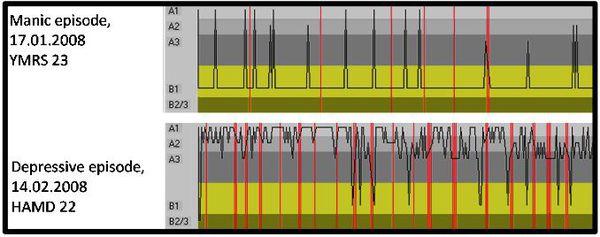 Показатели электроэнцефалографии при мании маниакально и депрессивном эпизодах