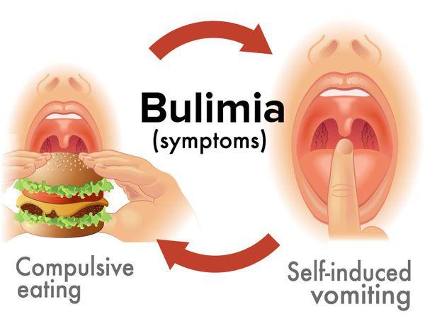 Симптомы нервной булимии