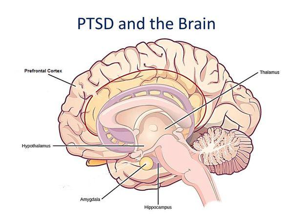 Активность головного мозга при посттравматического стрессового расстройства