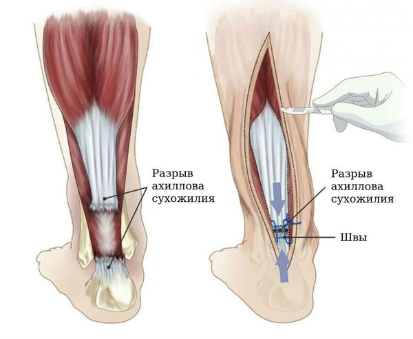 Оперативное лечение разрыва сухожилия