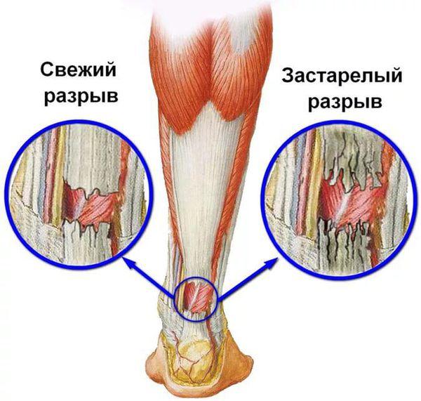Свежий и застарелый разрывы сухожилий