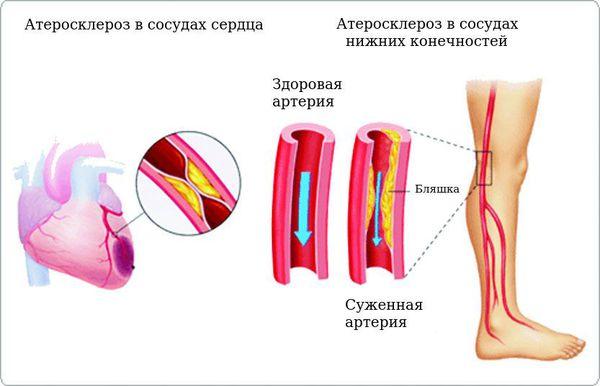 Атеросклеротические процессы в сосудах сердца и нижних конечностей