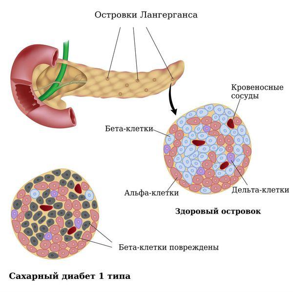 Дистрофические изменения бета-клеток