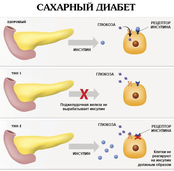 Отличие сахарного диабета 1 типа от сахарного диабета 2 типа
