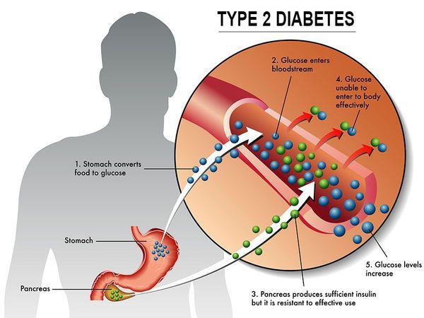 Нарушение липидного, белкового и углеводного обменов при диабете 2 типа
