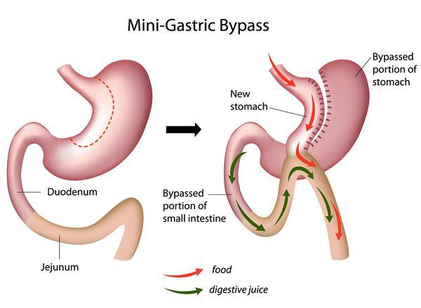 Мини шунтирование желудка