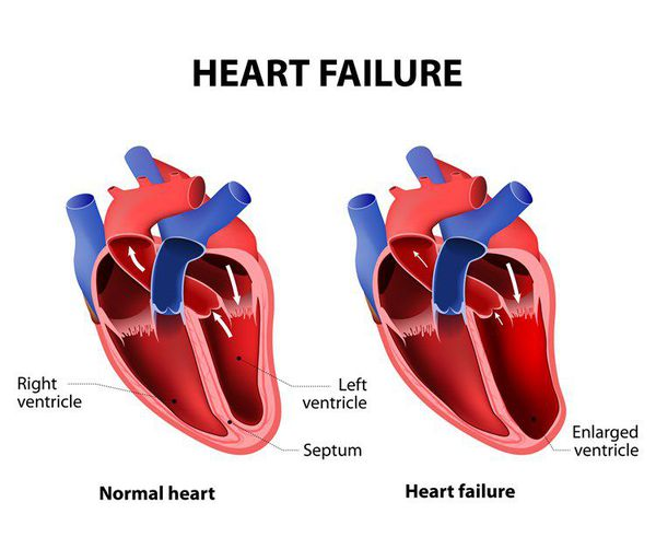303 s - Najčešći simptomi akutnog zatajenja srca su