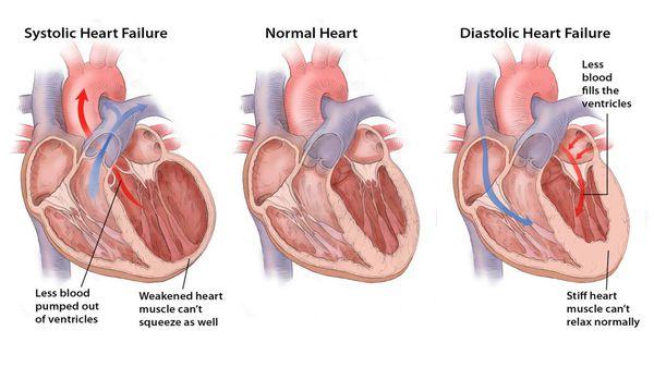 305 s - Najčešći simptomi akutnog zatajenja srca su