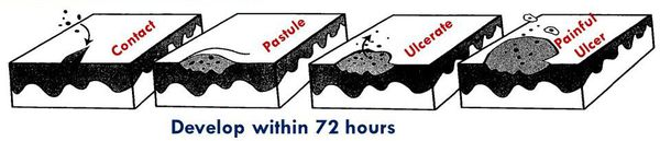 Механизм развития мягкого шанкра