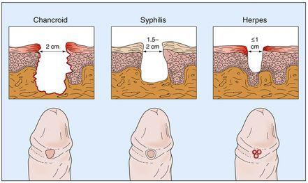 Отличие мягкого шанкра от сифилиса и герписа