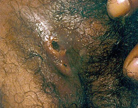 Свищ поражённого пахового лимфоузла