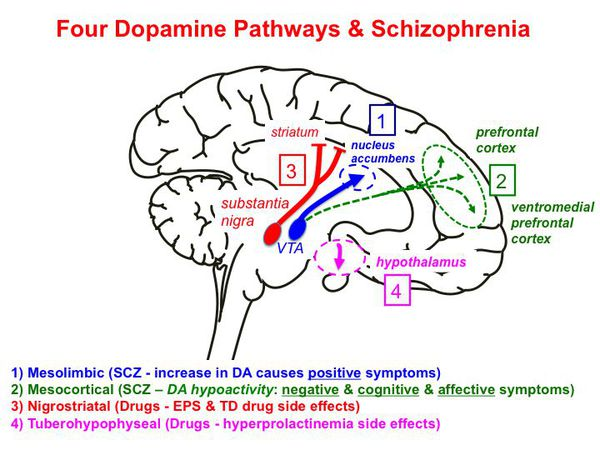 a study of the relationship of schizophrenia and dopamine Schizophrenia and the dopamine hypothesis symptoms of schizophrenia usually begin to appear during young childhood the most common symptoms are delusions, hallucinations, disorganized thinking/speech, social withdrawal, and loss of motivation and judgment.