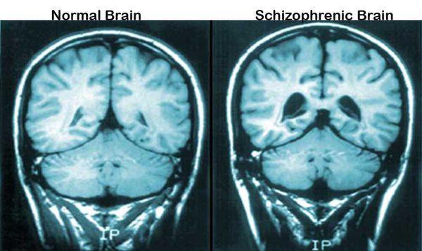 Шизофрения - симптомы и лечение