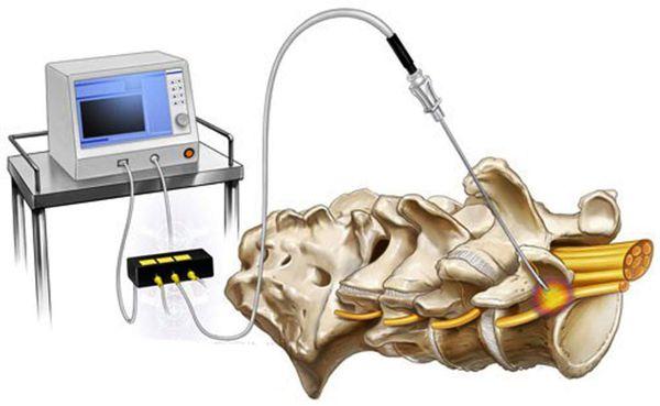 Радиочастотная абляция фасеточных суставов