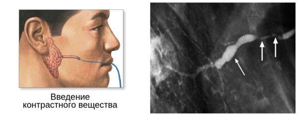 Сиалография с контрастированием: хронический сиалоаденит околоушной железы