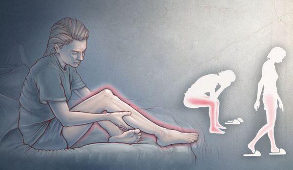 Неприятные ощущения в ногах во время сна и отдыха