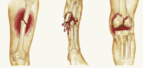 Открытые и закрытые переломы