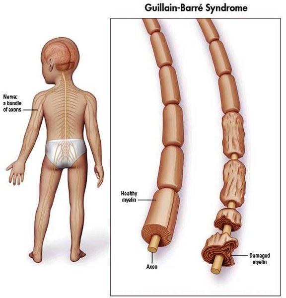 Аксон нейрона в норме и при синдроме Гийена - Барре