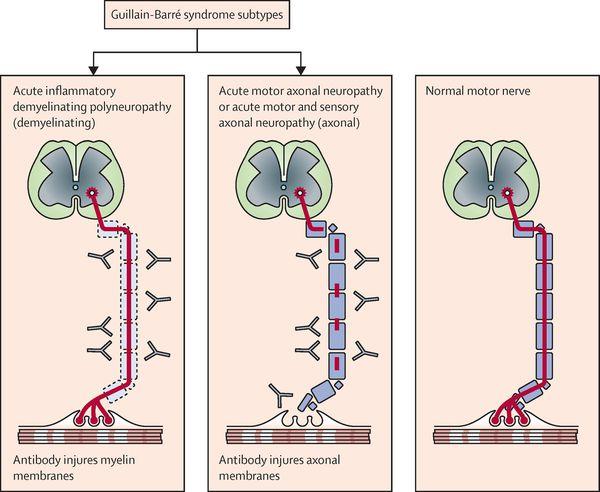 Подтипы синдрома Гийена — Барре