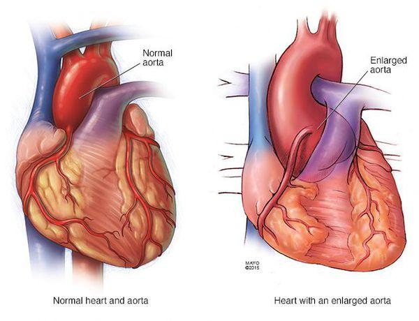 Порок аорты