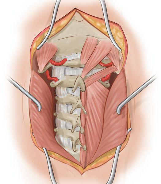 Мышцы, сдавливающие позвоночную артерию до и после выхода из канала