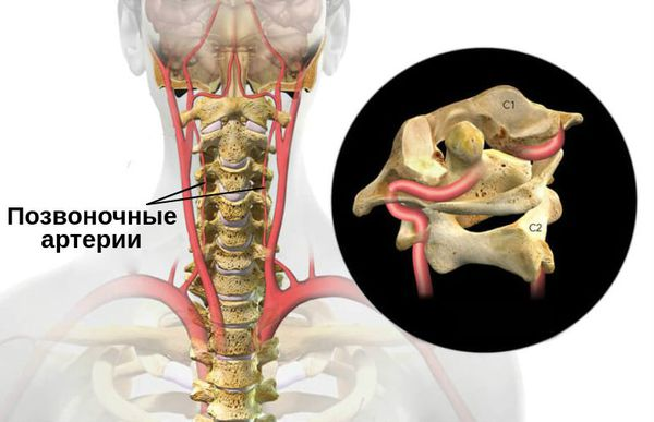 Позвоночные артерии