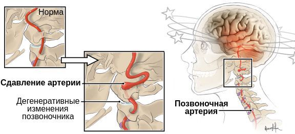 Сдавление позвоночной артерии