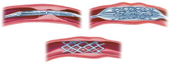 Стентирование позвоночной артерии