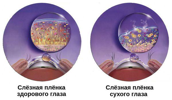 Изменение слёзной плёнки