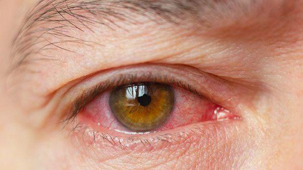 Раздражение при синдроме сухого глаза