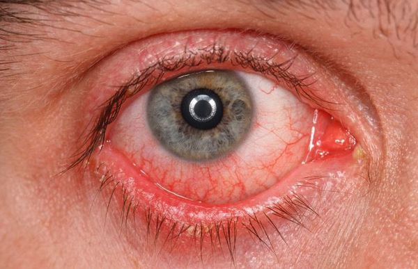 Симптомы сухого кератоконъюнктивита