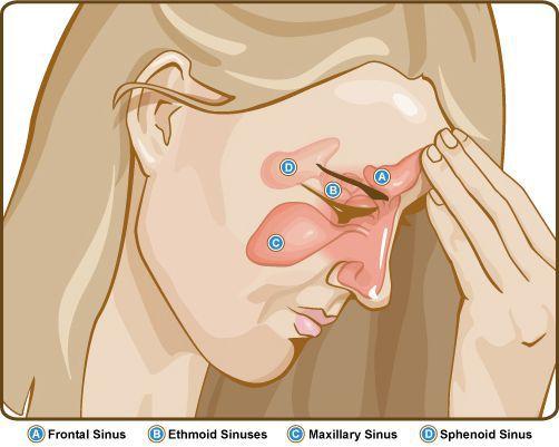 Головная боль и распирание в области пазух носа