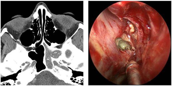 Признаки инфицирования кандидозом при хроническом синусите