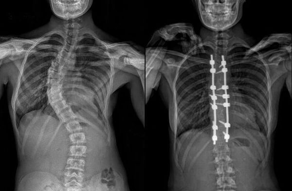Лечение сколиоза с помощью операции