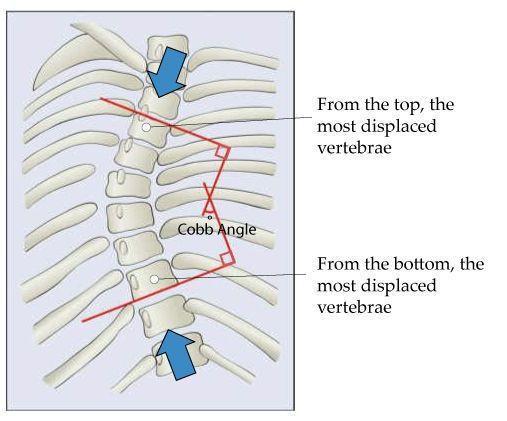 Определение угла сколиотической дуги