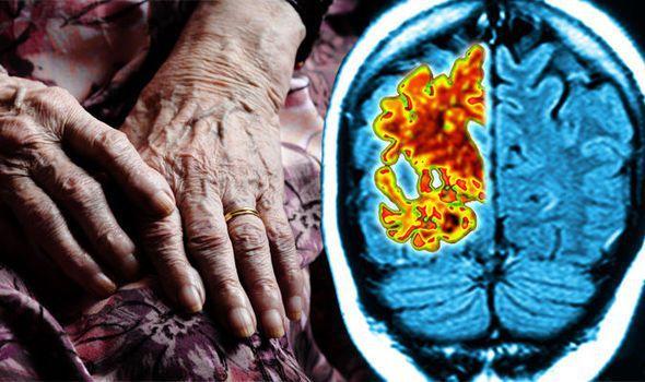 Поражение головного мозга при сосудистой деменции
