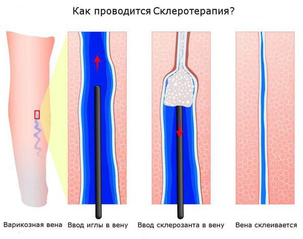 Процесс склеротерапии
