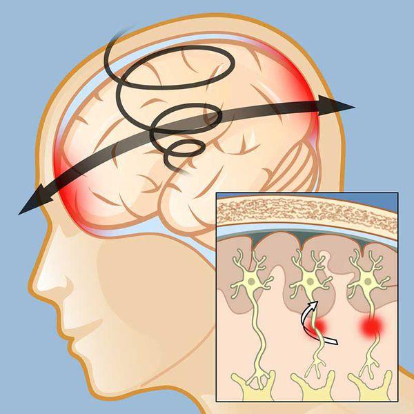 Нарушение связей клеток мозга при сотрясении