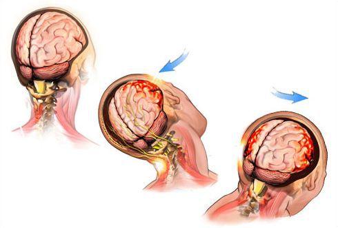 Повреждение головного мозга при сотрясении