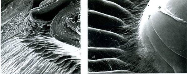 Растровая электронная микроскопия ресничного пояска, цилиарных отростков, цилиарной мышцы