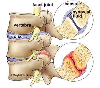 Дистрофия фасеточных межпозвонковых суставов