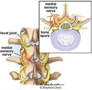 Раздражение спинальных нервов