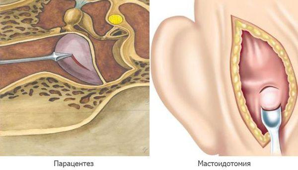 Парацентез и мастоидотомия