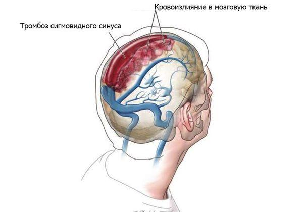 Тромбоз сигмовидного синуса