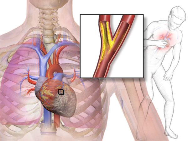 Причина стенокардии: нарушение поступления кислорода в сердечную мышцу