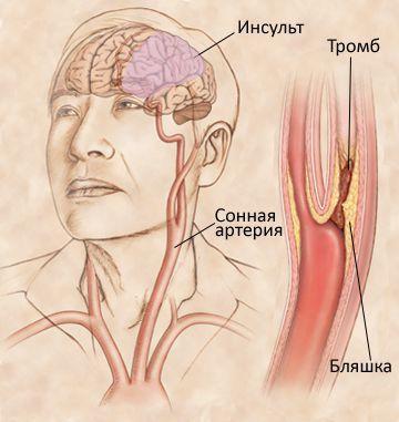 Схематическое изображение механизма развития ишемического инсульта