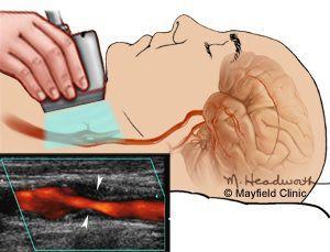 Ультразвуковое исследование сосудов шеи. Стрелки указывают на бляшку, суживающую просвет артерии