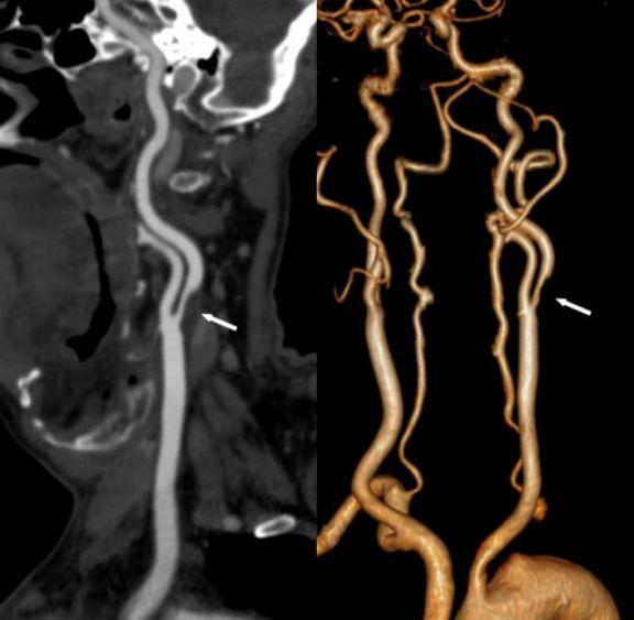КТ-ангиография артерий шеи. Справа – двухмерное, слева – трехмерное изображение. Стрелки указывают на стеноз левой внутренней сонной артерии